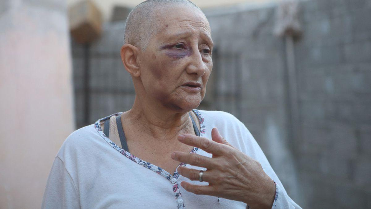 Salvaje golpiza a una mujer en Banda Norte: Me podrían haber matado